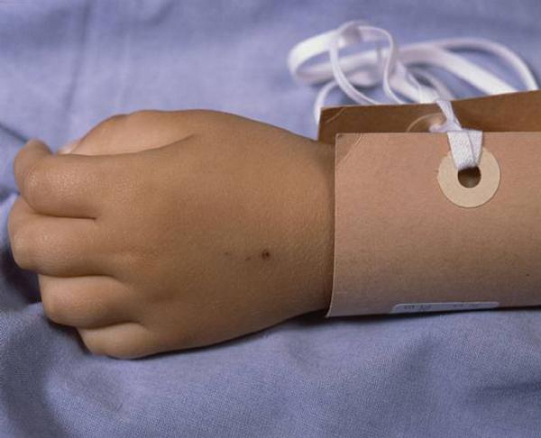 Pneumonia due to drowning III